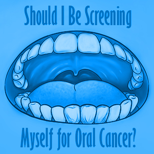 Should I be screening myself for oral cancer?
