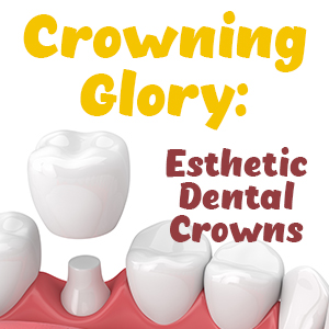 Crowning Glory: esthetic dental crowns