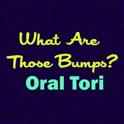 Bangor dentist, Dr. James Sevey & Dr. Natalie Sigwart at Creative Dental Solutions explains oral tori—what they are, why they happen, and whether they are a cause for concern.